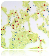 Gram Stain Kit (Modified Brown & Brenn)