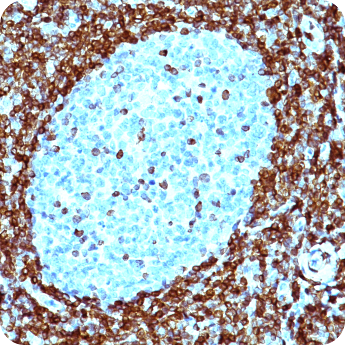 Bcl-2 (Apoptosis and Follicular Lymphoma Marker); Clone 124 (Concentrate)