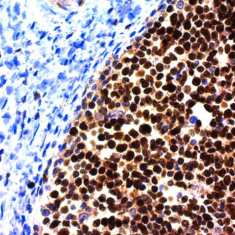 Bcl-6 (Follicular Lymphoma Marker); Clone IG191E/A8 (Concentrate)