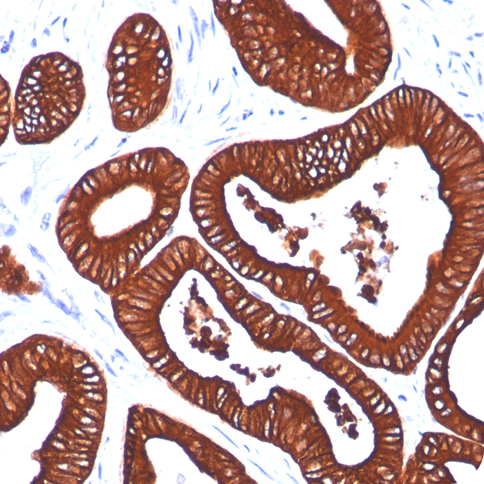 Cytokeratin 19 (KRT19) (Pancreatic Stem Cell Marker); Clone BA17 (Concentrate)