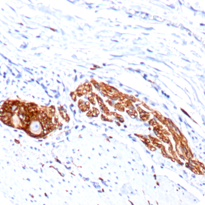 CD56 / NCAM1 / NKH1 (Neuronal Cell Marker); Clone 123C3.D5 & 123A8 (Concentrate)
