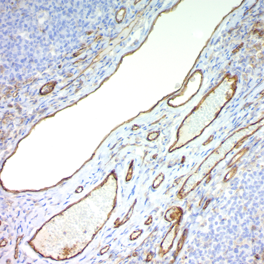 CD31 / PECAM-1 (Endothelial Cell Marker); Clone JC/70A (Concentrate)